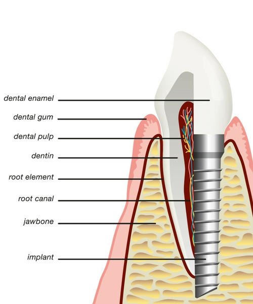 dental implants shreveport